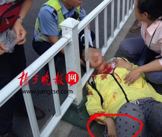 女孩被耳机线割喉 脖子悬空护栏造成五公分的伤口(组图)